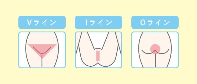 Oラインの脱毛できる範囲がわかるイラストを挿入