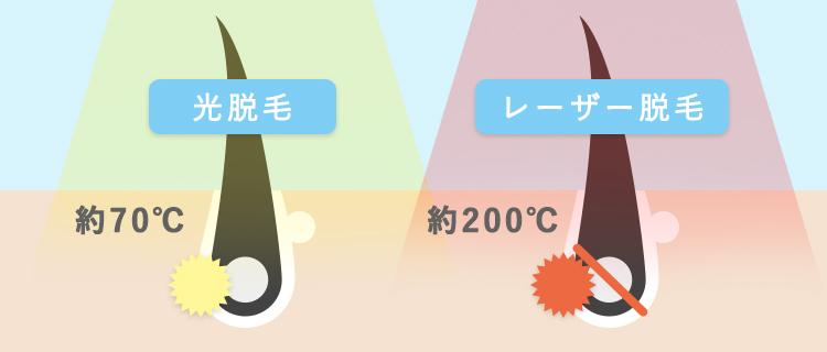 光脱毛とレーザー脱毛の仕組みの比較