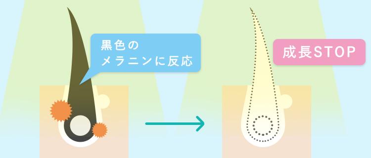 脱毛のメカニズムと毛周期サイクルの関係
