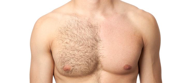 半分脱毛している男性