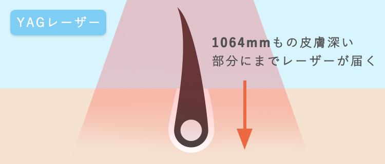 皮膚の奥までレーザーが行き届いている画像
