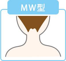 うなじ(襟足)脱毛でMW型に整えた画像