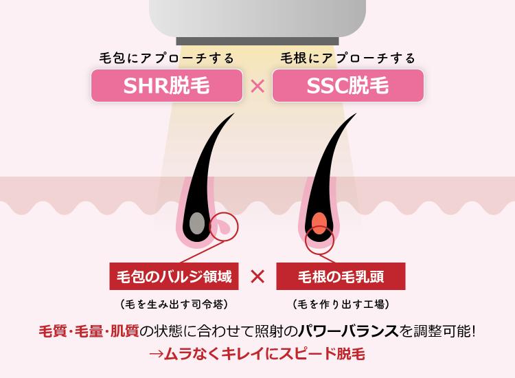 SHRとSSCのハイブリッドスピード脱毛とは?