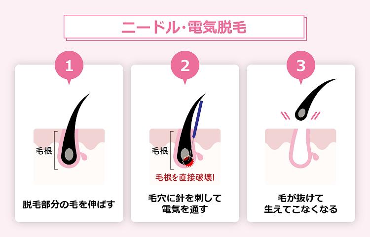 【ニードル・電気脱毛】ならビューティースキンクリニック!